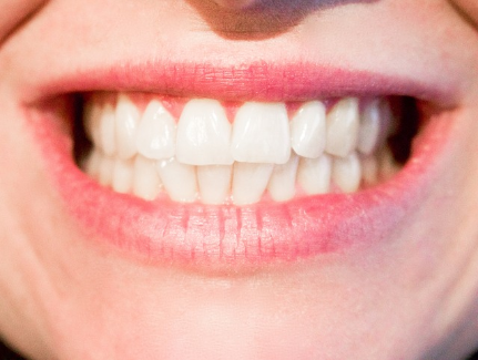 Zahnzusatzversicherung von AXA - Teure Zuzahlungen beim Zahnarzt vermeiden